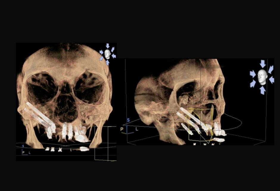 Reconstrucción 3D de colocación implantescigmáticos en paciente Clinica Torres Carranza